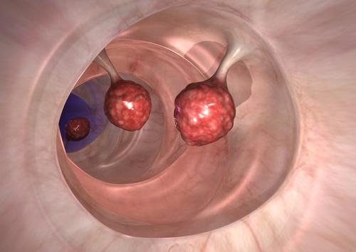 Darmpolypen können während einer Darmspiegelung entfernt werden